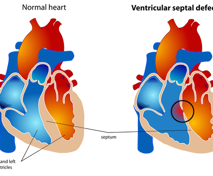 Ventricular septal defect (VSD)