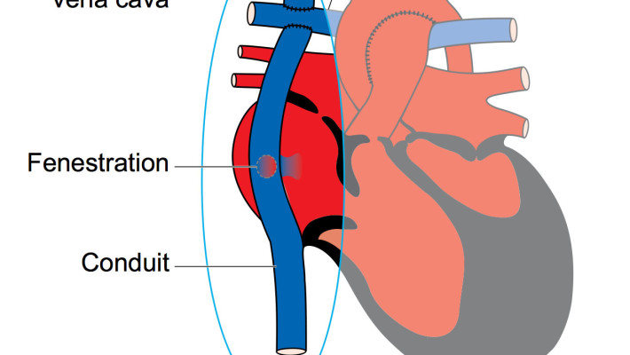 Stimulation of ventricular stiffening trough the different stages of single ventricle surgery leading to the Fontan operation
