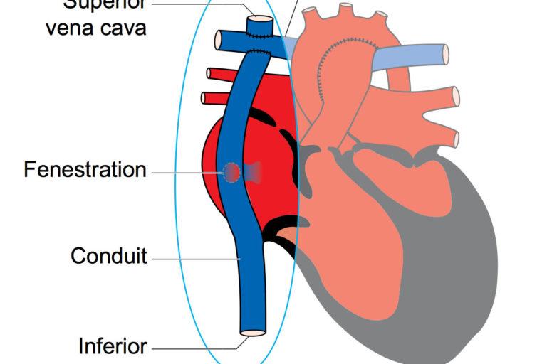 Fontan circulation child heart specialist