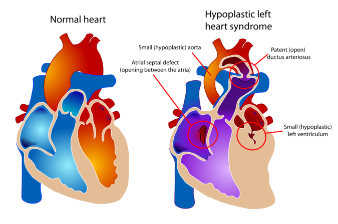 Hypoplastic left heart syndrome child heart specialist london