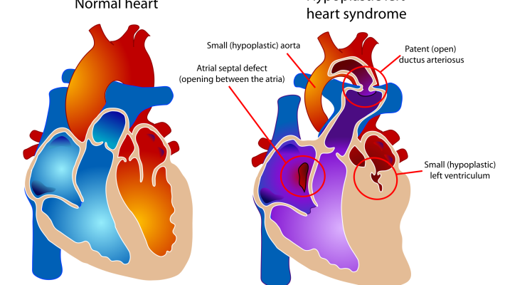 Do relatives of children with hypoplastic left heart syndrome (HLHS) have a higher rate of cardiac malformations?