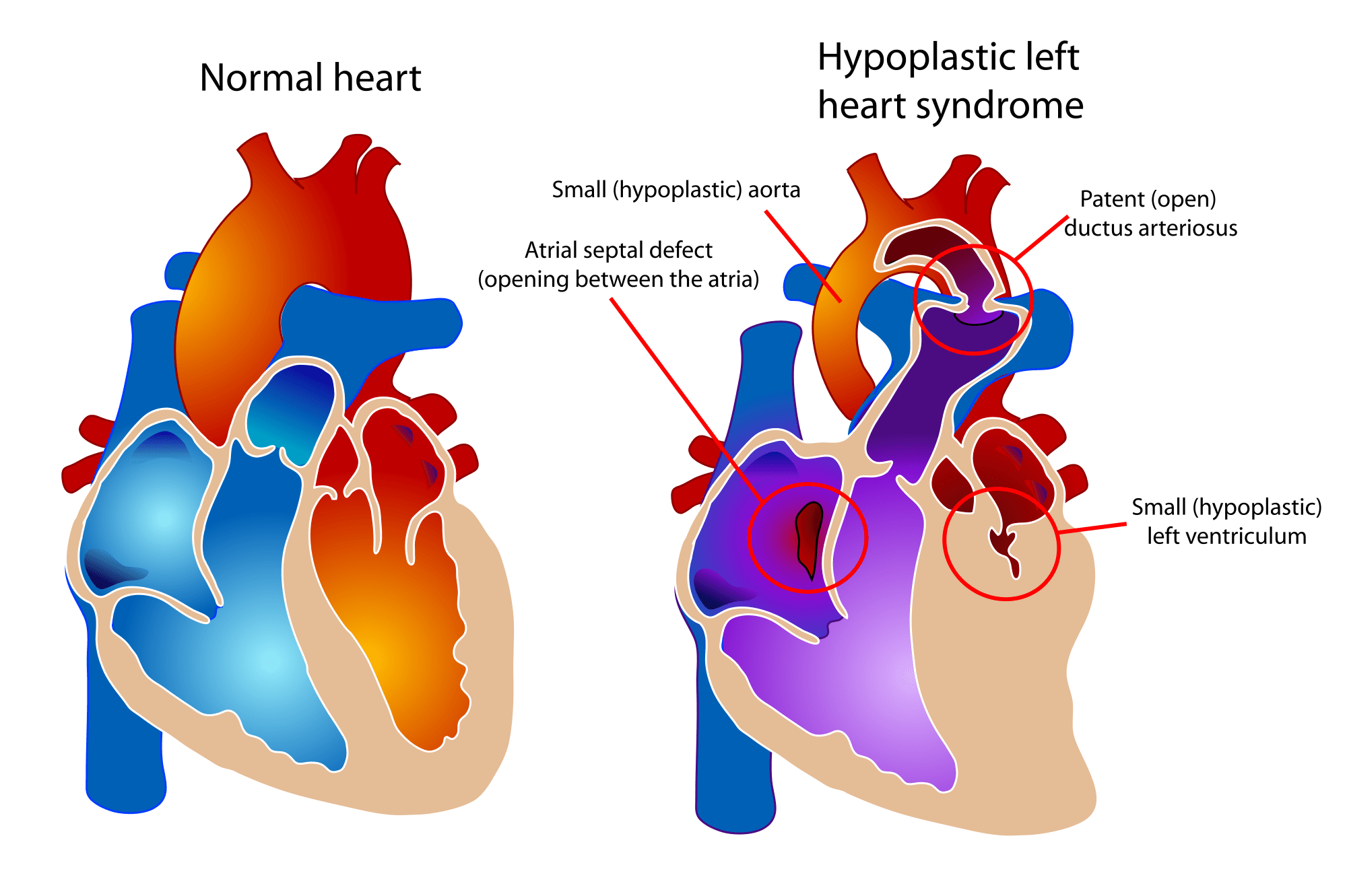 Do Relatives Of Children With Hypoplastic Left Heart Syndrome Hlhs Have A Higher Rate
