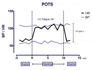 Postural Tachycardia Syndrome (POTS)