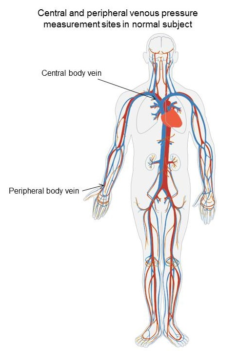Central venous pressure fontan