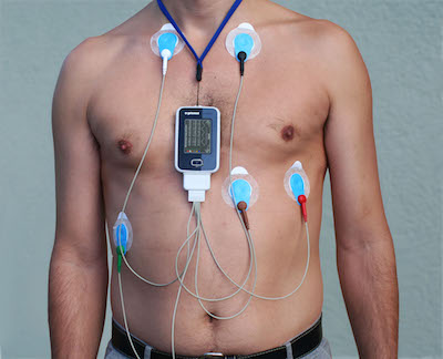 24 hour ECG Holter recording