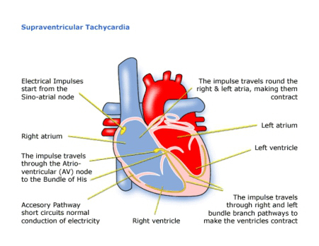 Superventricular Tachycardia Palpitation