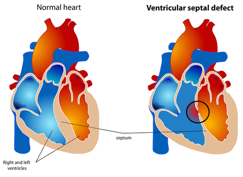 Ventricular septal defect vsd