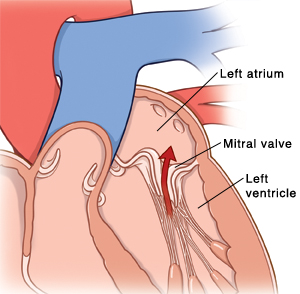 What happens to the heart during mitral valve prolapse